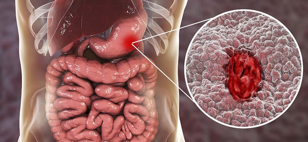 Hemorragia digestiva alta en los adultos: evaluación y gestión
